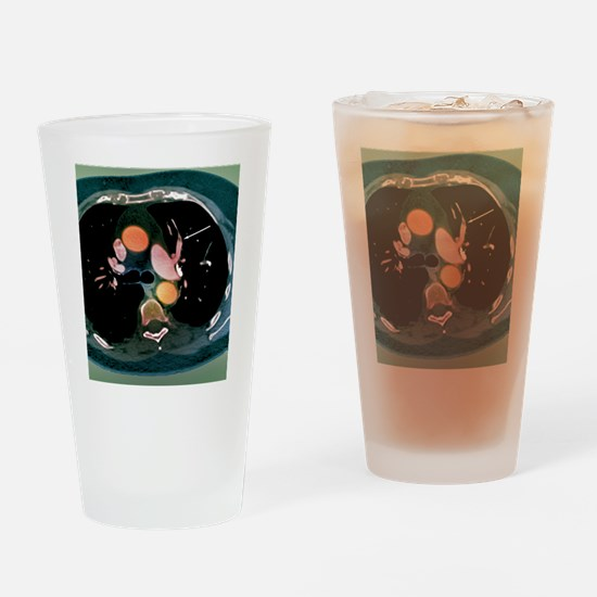 Pulmonary embolism, CT scan Drinking Glass