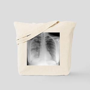 Pneumonia, X-ray Tote Bag