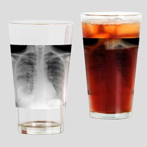 Pneumonia, X-ray Drinking Glass