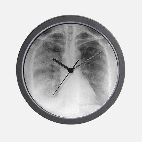 Pneumonia, X-ray Wall Clock