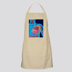 Breast cancer, artwork Apron