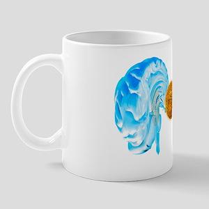 Brain cancer, conceptual artwork Mug
