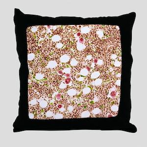 Bone marrow, light micrograph Throw Pillow