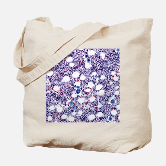 Bone marrow, light micrograph Tote Bag