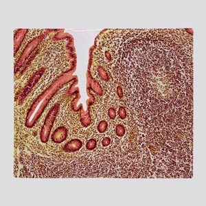 Appendicitis, light micrograph Throw Blanket