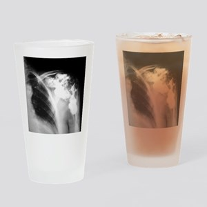 Melorheostosis of the shoulder, X-r Drinking Glass