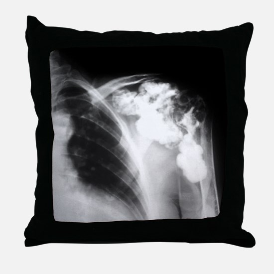 Melorheostosis of the shoulder, X-ray Throw Pillow