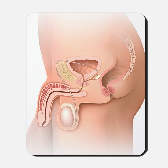 Male pelvic region, artwork Mousepad