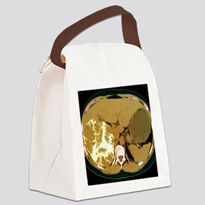 Liver cancer, CT scan Canvas Lunch Bag