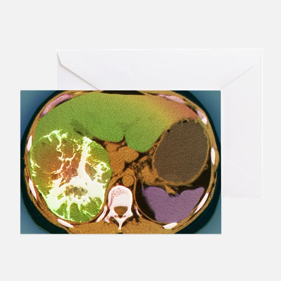 Liver cancer, CT scan Greeting Card