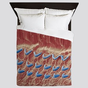 Inner ear hair cells, SEM Queen Duvet