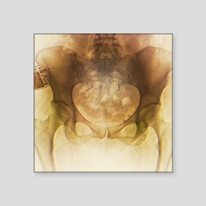 """Incontinence implant, X-ray Square Sticker 3"""" x 3"""""""