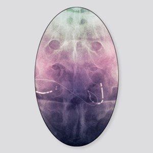 Incontinence implant, X-ray Sticker (Oval)