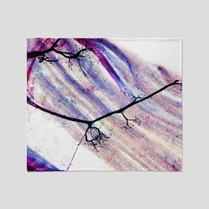 Muscle motor neurones, light microgr Throw Blanket