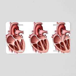 Heart valves, artwork Aluminum License Plate