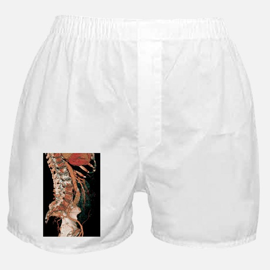 Heart and aortic artery, 3D CT scan Boxer Shorts
