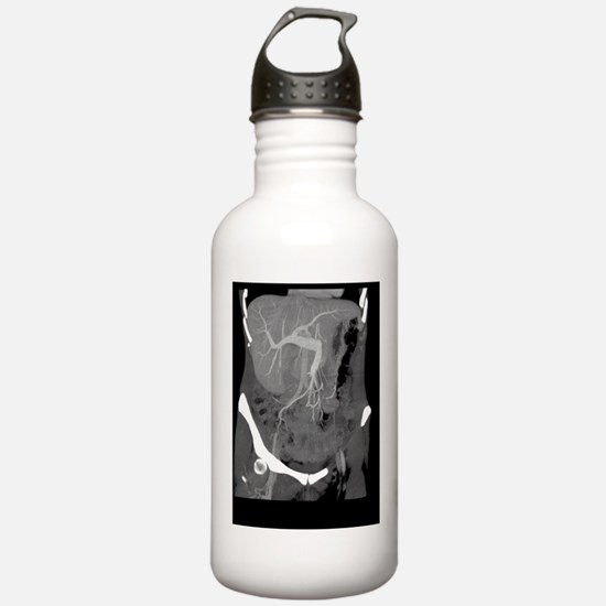 Healthy liver, CT scan Sports Water Bottle