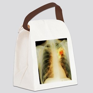 Lung abscess, X-ray Canvas Lunch Bag