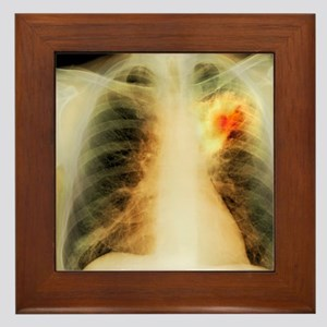 Lung abscess, X-ray Framed Tile