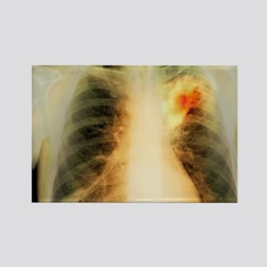 Lung abscess, X-ray Rectangle Magnet