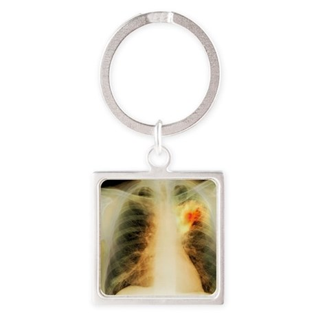 Lung abscess, X-ray Square Keychain