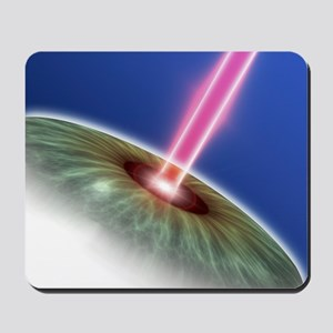 Laser eye surgery, computer artwork Mousepad