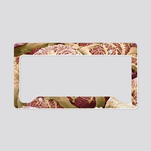 Kidney glomerulus, SEM License Plate Holder