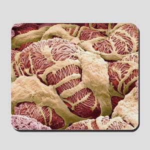 Kidney glomerulus, SEM Mousepad