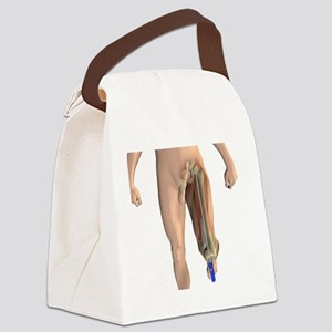 Knee replacement alignment, artwo Canvas Lunch Bag