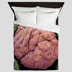 Kidney glomerulus, SEM Queen Duvet