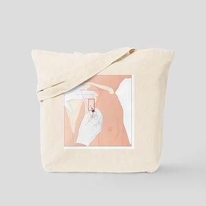 Intramuscular deltoid injection, artwork Tote Bag
