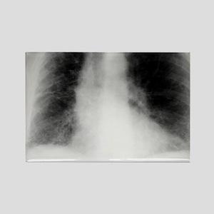 Fibrosing alveolitis, X-ray Rectangle Magnet
