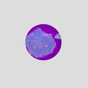Human embryonic stem cells, TEM Mini Button