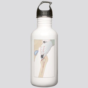 Hip replacement, artwo Stainless Water Bottle 1.0L