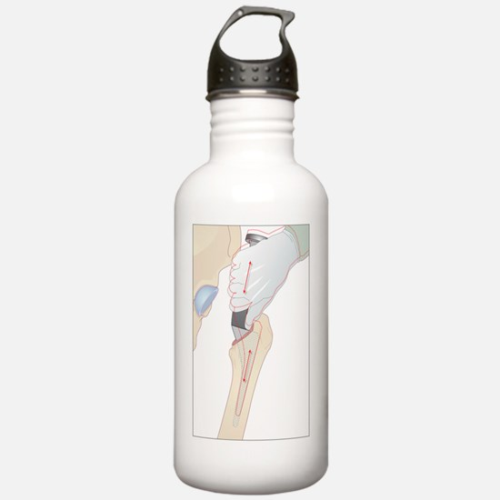 Hip replacement, artwo Water Bottle