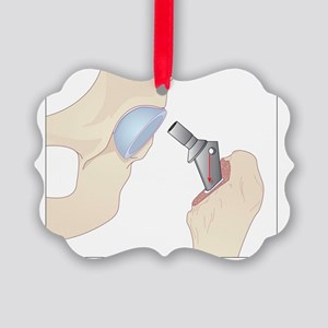 Hip replacement, artwork Picture Ornament