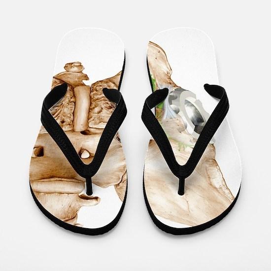 Hip replacement, artwork Flip Flops