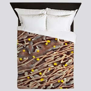 Hepatitis C viruses, TEM Queen Duvet