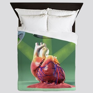 Heart damaged by radiotherapy, artwork Queen Duvet