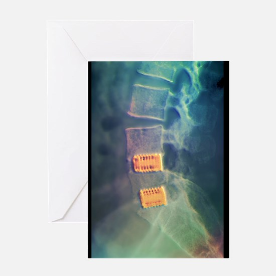 Fusion of spinal bones, X-ray Greeting Card