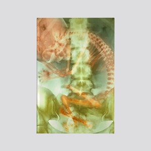 Full-term foetus, X-ray Rectangle Magnet