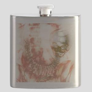 Full-term foetus, X-ray Flask
