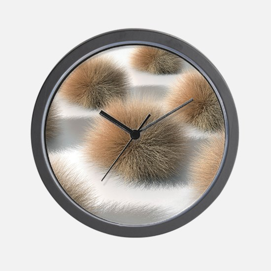 Fungal skin infection, artwork Wall Clock