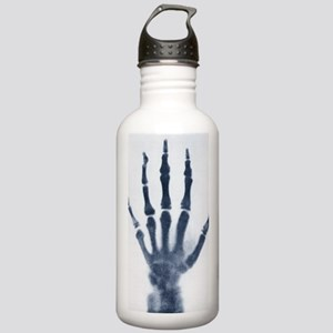 Early x-ray of a child Stainless Water Bottle 1.0L