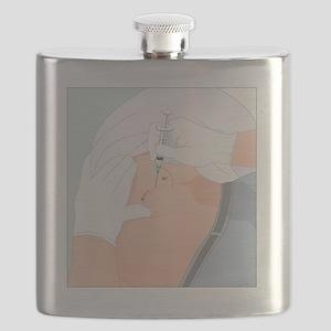 Dorsogluteal injection, artwork Flask