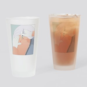 Dorsogluteal injection, artwork Drinking Glass