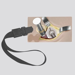 Draining a wound, artwork Large Luggage Tag
