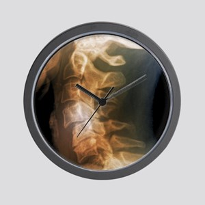 Dislocated neck bones, X-ray Wall Clock