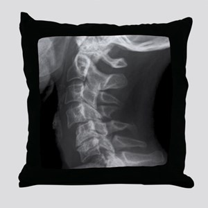 Dislocated neck bones, X-ray Throw Pillow