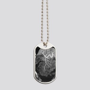 Chronic liver disease, CT scan Dog Tags